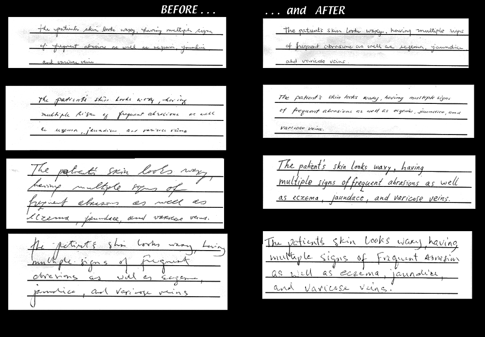 Before and After comparisons featuring the handwriting of four physicians